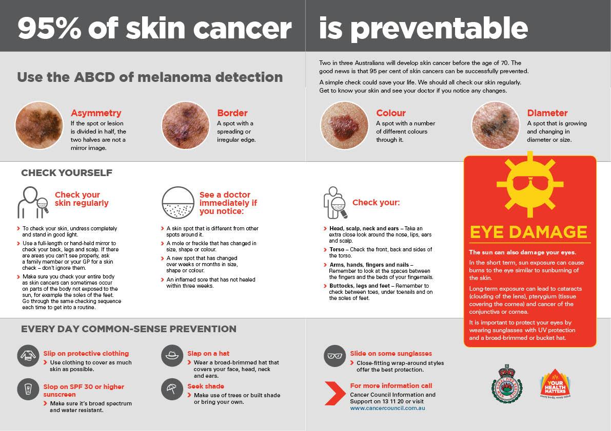 Bulletin Skin Cancer Liftout